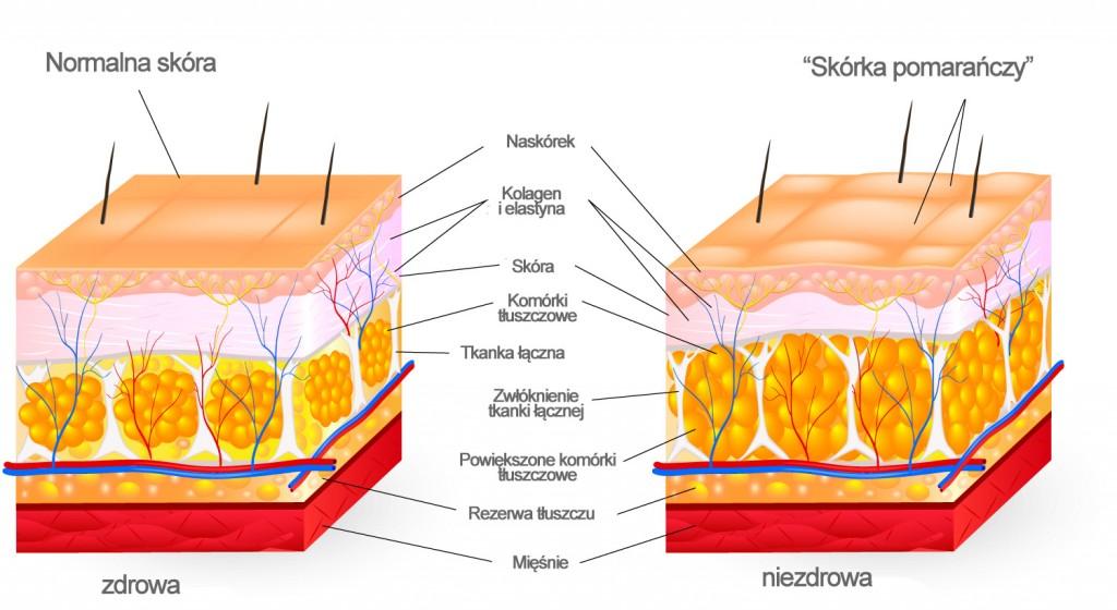 powstawanie-cellulitu-schemat
